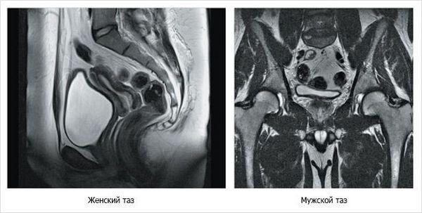 МРТ исследования органов малого таза