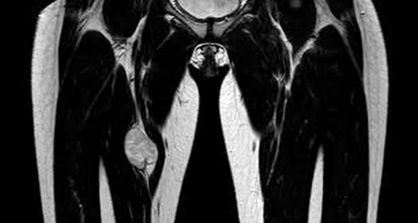 МРТ мягких тканей ягодичной области