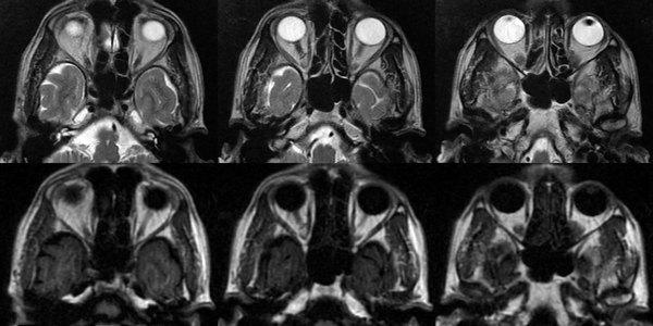 МРТ глазных орбит